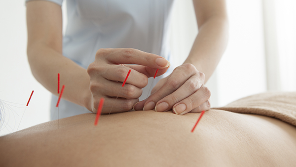 Get the Best Acupuncture Treatment from Eminent Wellness for Pain Management